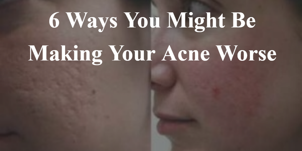 6 Ways You Might Be Making Your Acne Worse 2