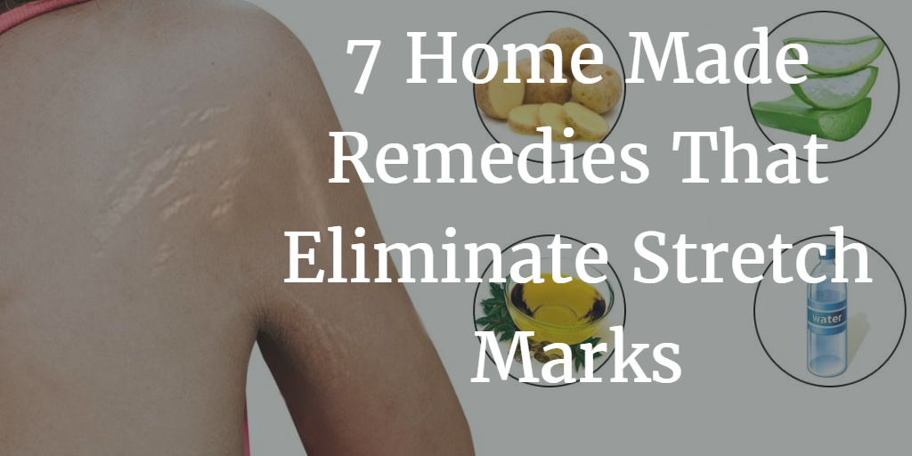 7 Home Made Remedies That Eliminate Stretch Marks 1