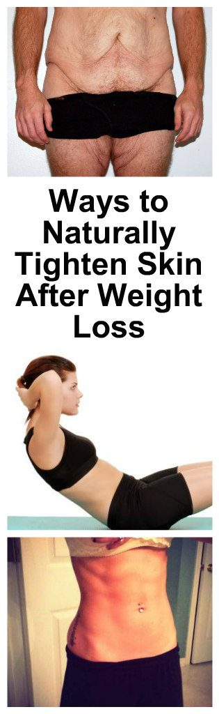 10 Ways to Naturally Tighten Skin After Weight Loss1