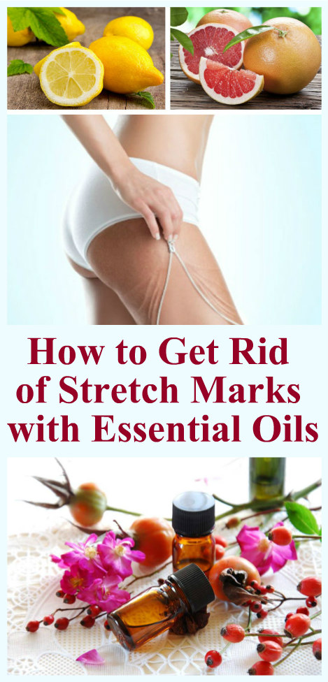 how-to-get-rid-of-stretch-marks-with-essential-oils-1