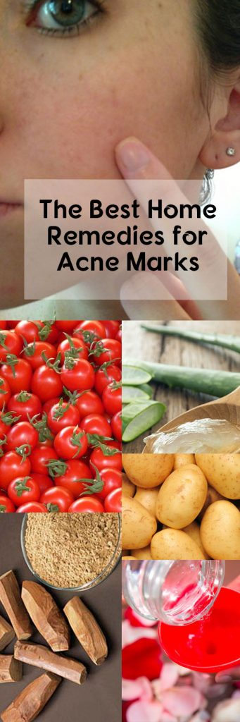 the-best-home-remedies-for-acne-marks